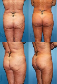 Brazilian Butt Lift (Buttock Augmentation Using Fat Transfer) Gallery - Patient 2395051 - Image 1