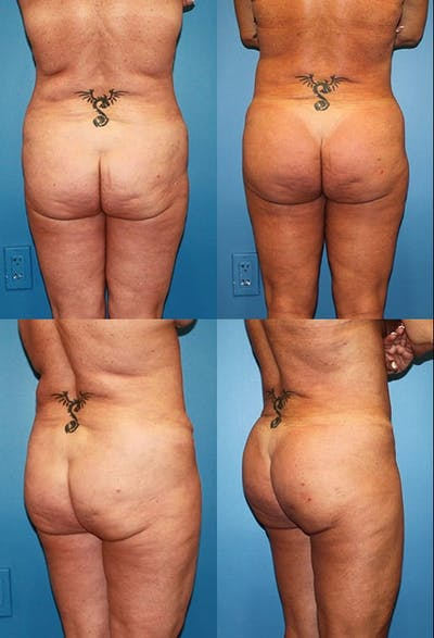 Buttock Enhancement Gallery - Patient 2161791 - Image 1