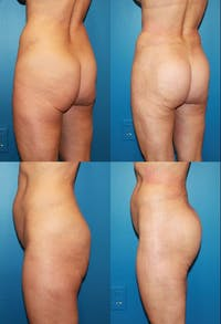 Buttock Enhancement Gallery - Patient 2161792 - Image 1