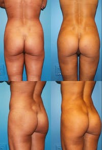 Brazilian Butt Lift (Buttock Augmentation Using Fat Transfer) Gallery - Patient 2395053 - Image 1