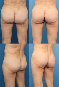 Buttock Enhancement Gallery - Patient 2161796 - Image 1