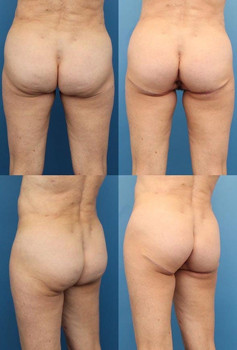 Buttock Enhancement Gallery - Patient 2161796 - Image 1