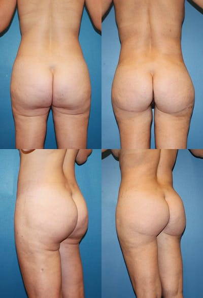 Buttock Enhancement Gallery - Patient 2161797 - Image 1