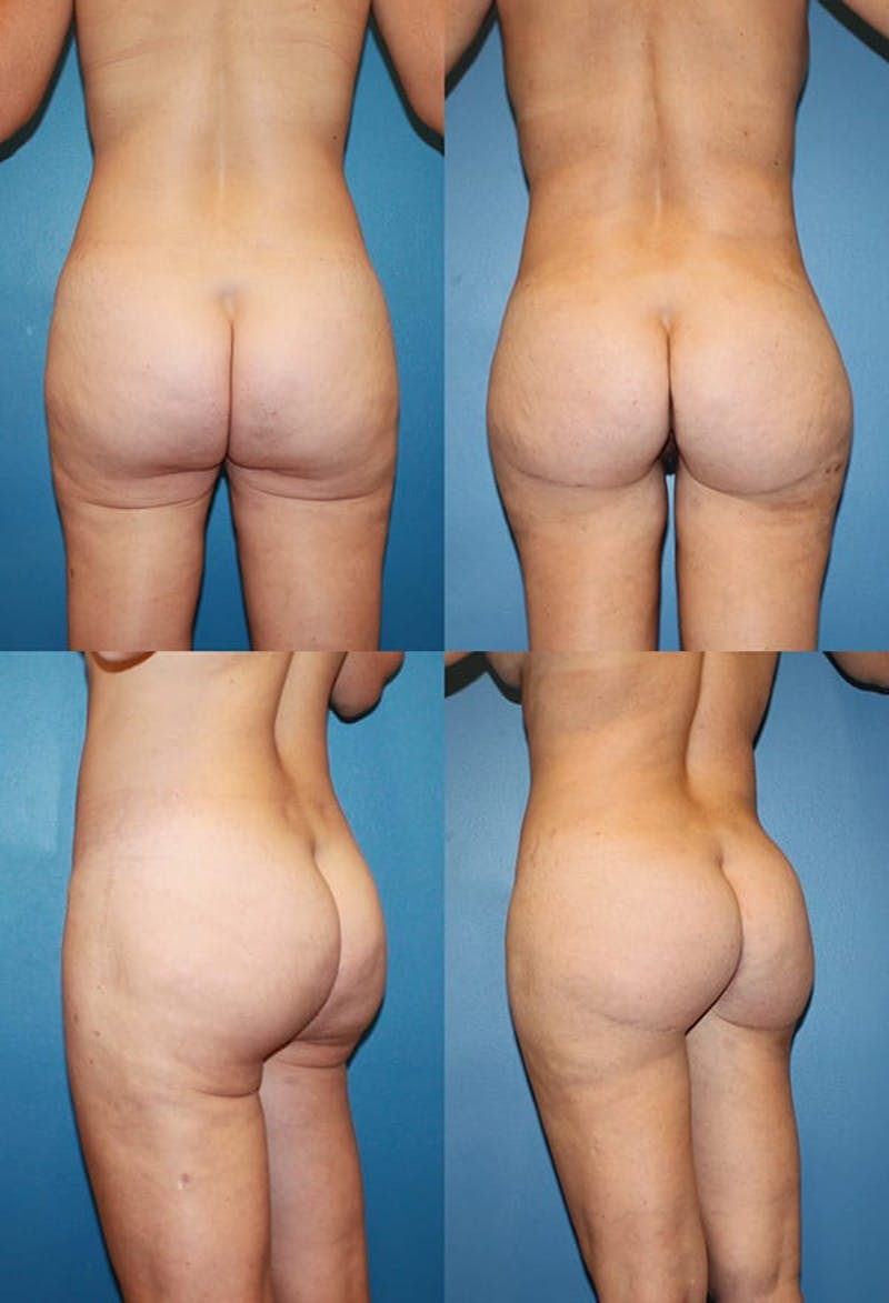 Butt Tuck (Infragluteal Thighlift) Gallery - Patient 2395960 - Image 1