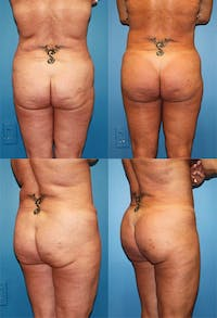 Butt Tuck (Infragluteal Thighlift) Gallery - Patient 2395961 - Image 1