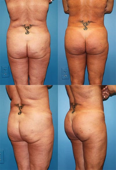 Buttock Enhancement Gallery - Patient 2161798 - Image 1