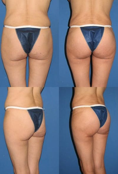 Butt Tuck (Infragluteal Thighlift) Gallery - Patient 2395962 - Image 1