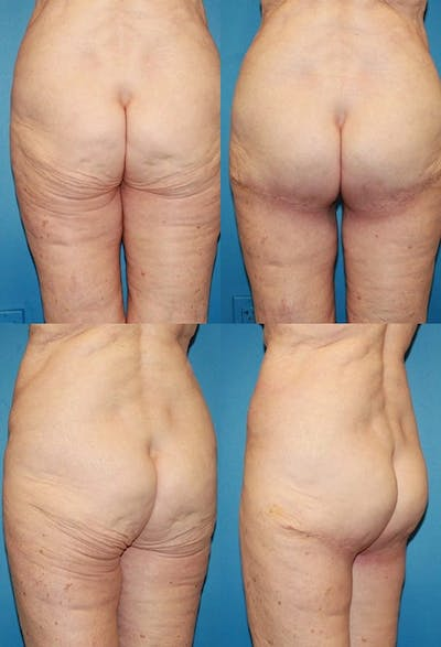 Butt Tuck (Infragluteal Thighlift) Gallery - Patient 2395963 - Image 1