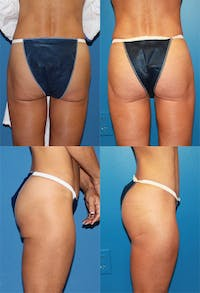 Buttock Enhancement Gallery - Patient 2161801 - Image 1