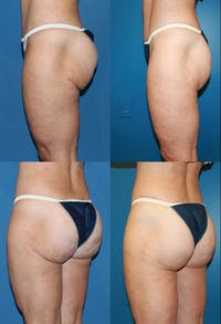 Butt Tuck (Infragluteal Thighlift) Gallery - Patient 2395966 - Image 1