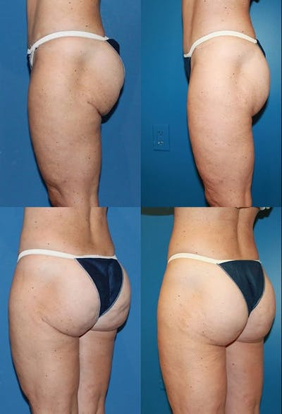 Buttock Enhancement Gallery - Patient 2161803 - Image 1