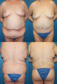 Body Lift / Thigh Lift Gallery - Patient 2161817 - Image 1