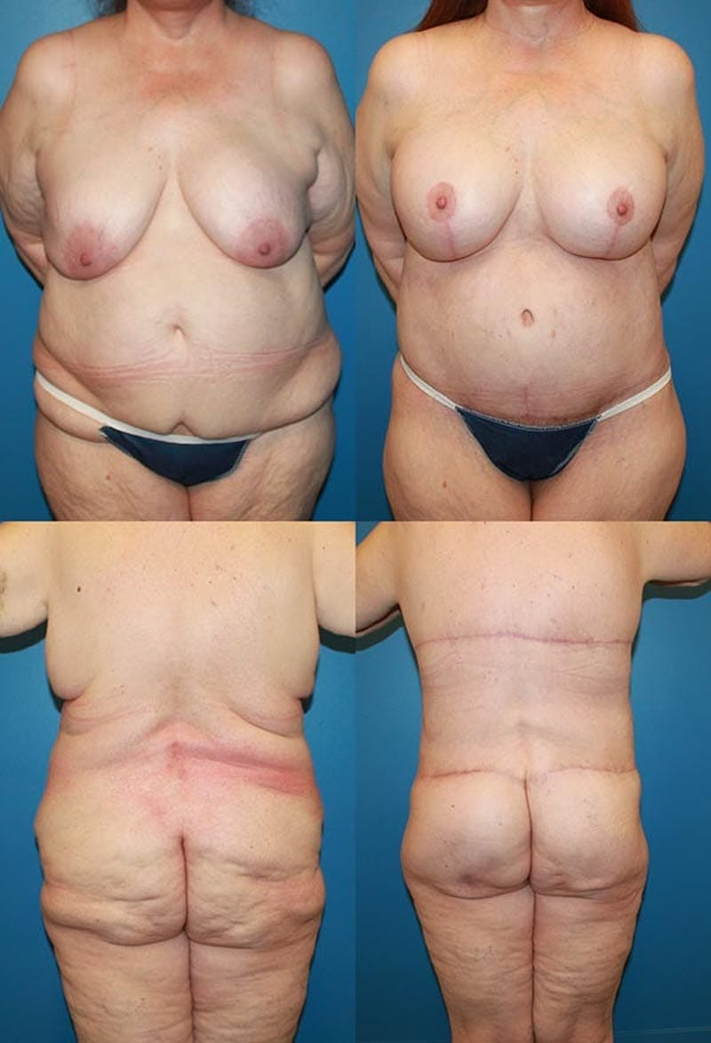 Body Lift / Thigh Lift Gallery - Patient 2161818 - Image 1