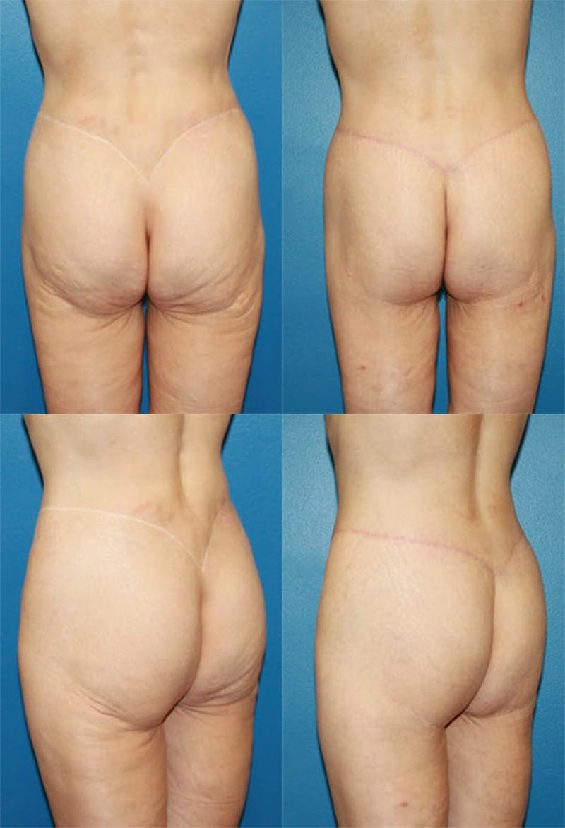 Body Lift / Thigh Lift Gallery - Patient 2161819 - Image 1
