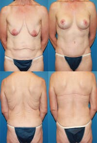 Body Lift / Thigh Lift Gallery - Patient 2161820 - Image 1
