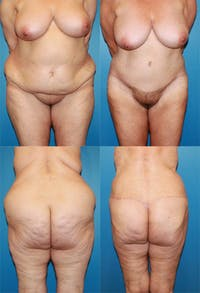 Body Lift / Thigh Lift Gallery - Patient 2161821 - Image 1