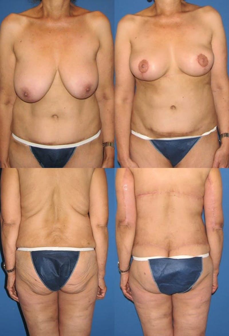 Body Lift / Thigh Lift Gallery - Patient 2161822 - Image 1
