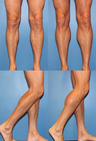 Calf Augmentation Gallery - Patient 2161824 - Image 1