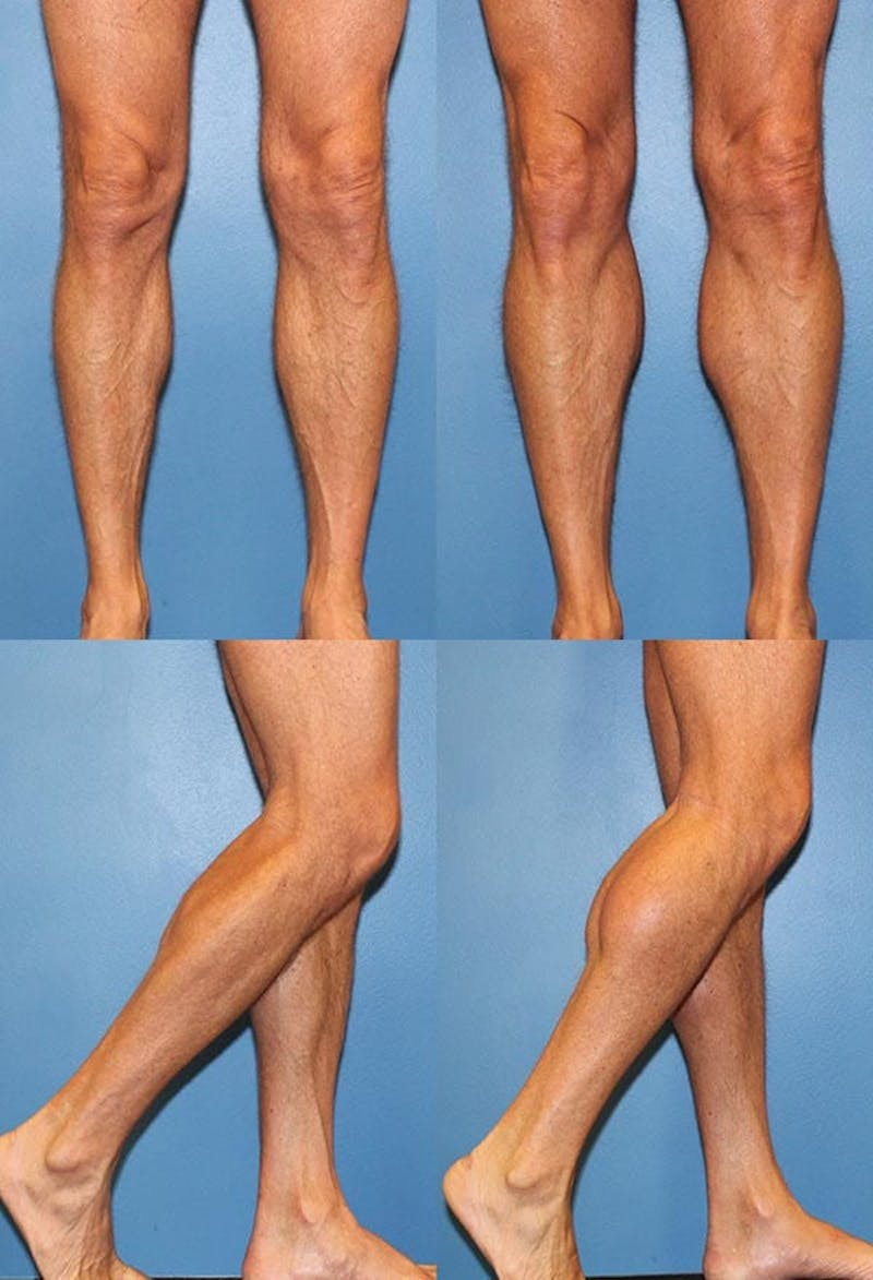 Calf Augmentation Gallery - Patient 2161824 - Image 1