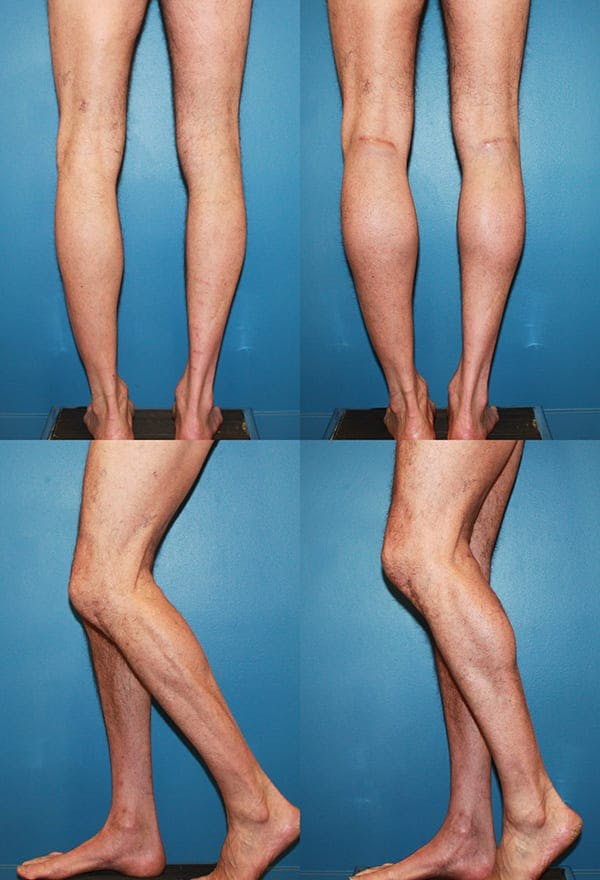 Calf Augmentation