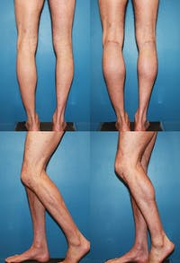 Calf Augmentation Gallery - Patient 2161826 - Image 1