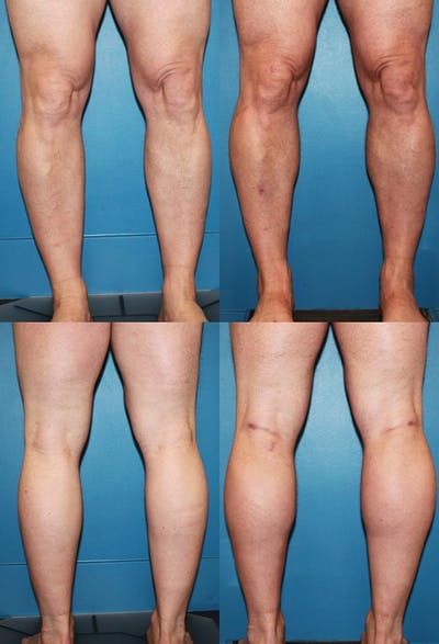 Calf Augmentation Gallery - Patient 2161827 - Image 1