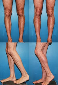 Calf Augmentation Gallery - Patient 2161828 - Image 1