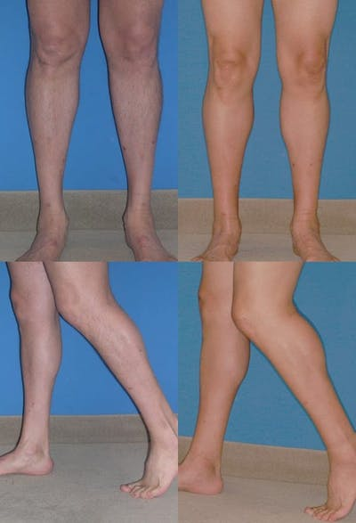 Calf Augmentation Gallery - Patient 2161832 - Image 1