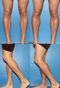 Calf Augmentation Gallery - Patient 2161833 - Image 1