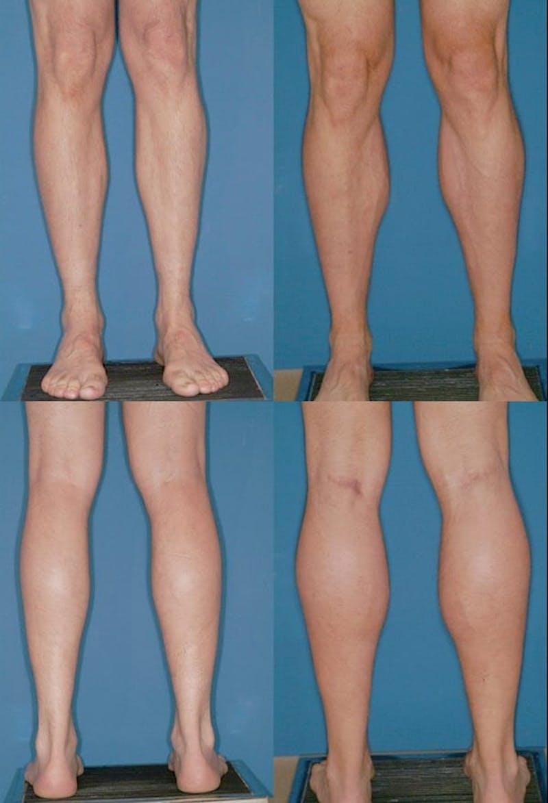 Calf Augmentation Gallery - Patient 2161834 - Image 1