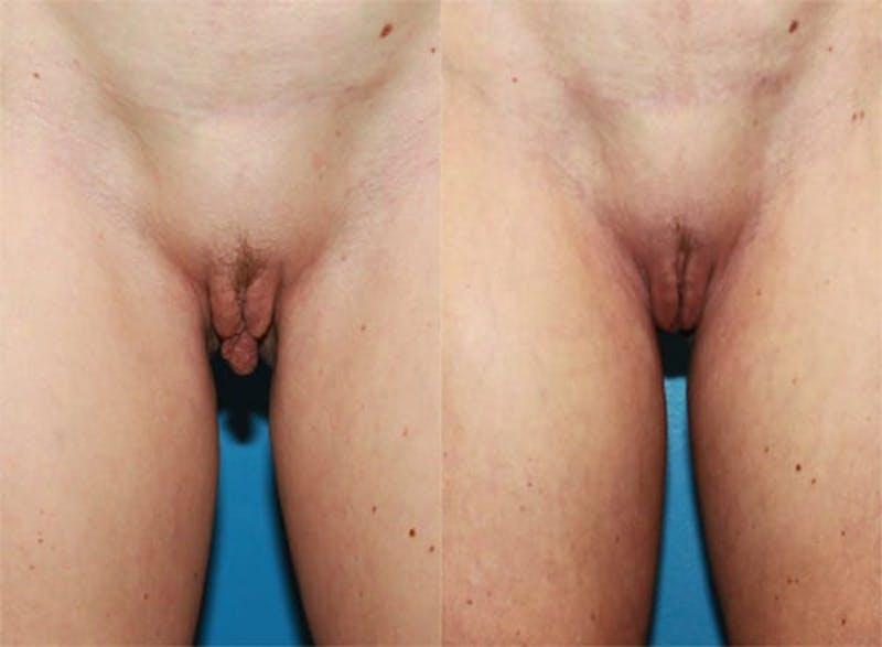 Labiaplasty Gallery - Patient 2161847 - Image 1