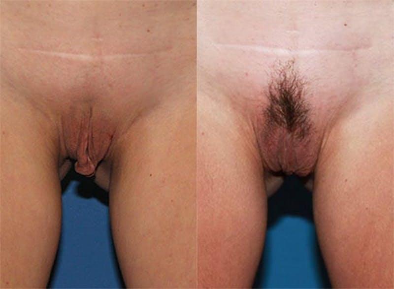 Labiaplasty Gallery - Patient 2161848 - Image 1