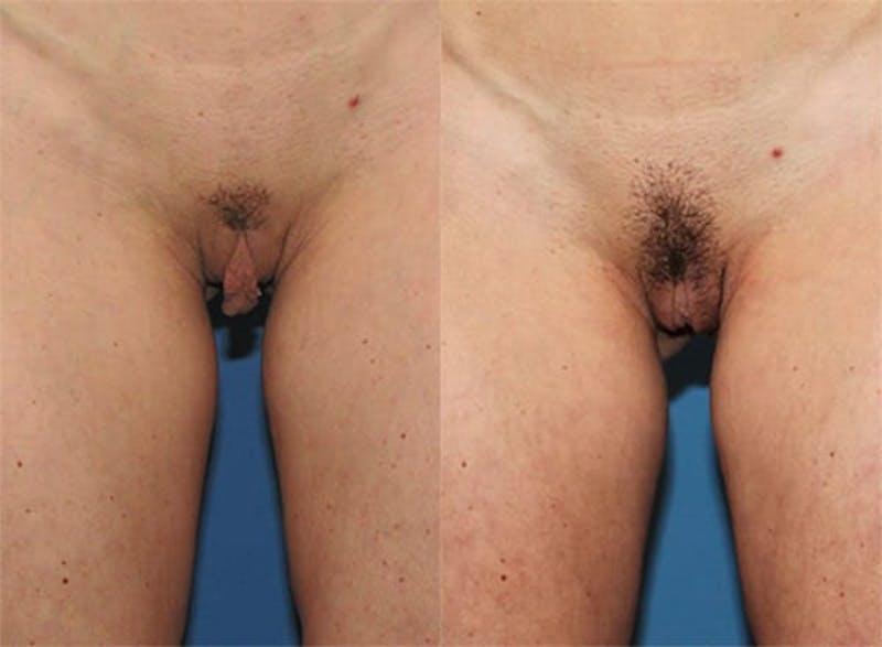 Labiaplasty Gallery - Patient 2161849 - Image 1