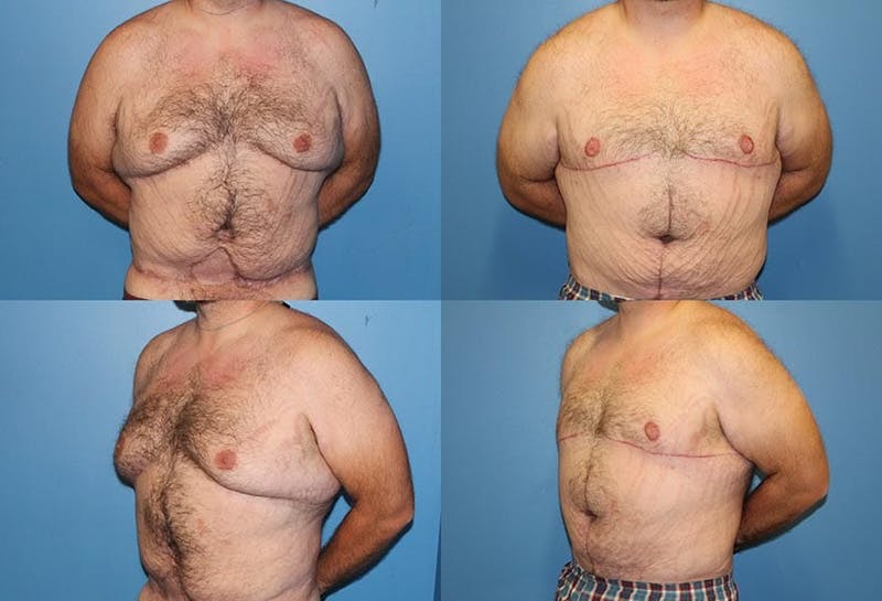 Male Breast Reduction/Gynecomastia Gallery - Patient 2161875 - Image 1