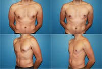 Male Breast Reduction/Gynecomastia Gallery - Patient 2161877 - Image 1