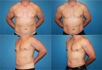 Male Breast Reduction/Gynecomastia Gallery - Patient 2161878 - Image 1