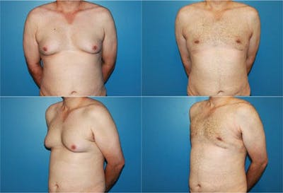 Male Breast Reduction/Gynecomastia Gallery - Patient 2161879 - Image 1