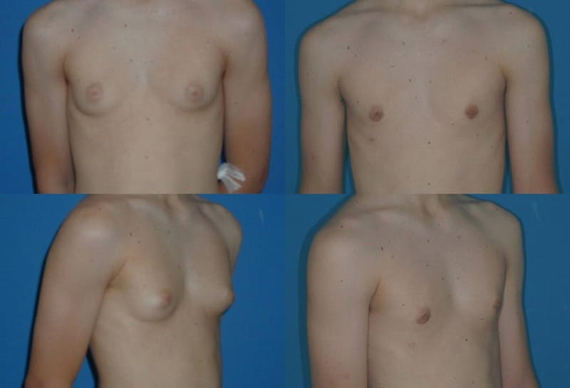 Male Breast Reduction/Gynecomastia Gallery - Patient 2161880 - Image 1