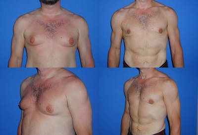 Male Breast Reduction/Gynecomastia Gallery - Patient 2161881 - Image 1