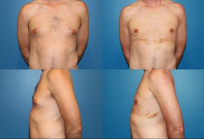 Male Breast Reduction/Gynecomastia Gallery - Patient 2161882 - Image 1