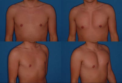 Male Pectoral Augmentation Gallery - Patient 2161883 - Image 1