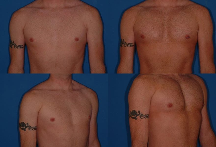 Pectoral Augmentation