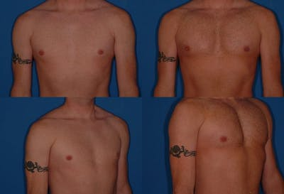 Male Pectoral Augmentation Gallery - Patient 2161884 - Image 1
