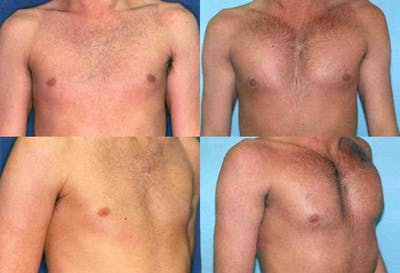 Male Pectoral Augmentation Gallery - Patient 2161885 - Image 1