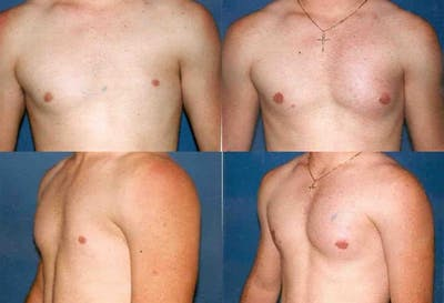 Male Pectoral Augmentation Gallery - Patient 2161886 - Image 1