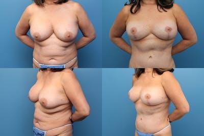 En Bloc Capsulectomy Gallery - Patient 6611211 - Image 1