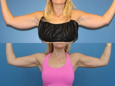 Coolsculpting Gallery - Patient 2161905 - Image 1