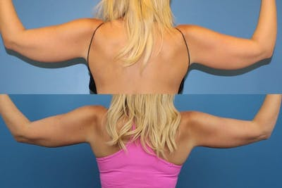 Coolsculpting Gallery - Patient 2161905 - Image 2
