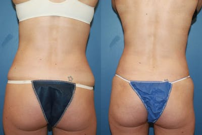 Coolsculpting Gallery - Patient 2161907 - Image 1