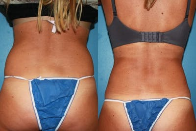 Coolsculpting Gallery - Patient 2161908 - Image 1